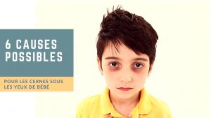 6 causes possibles pour les cernes sous les yeux de bébé