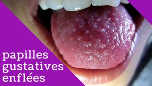Papilles gustatives enflées: le guide ultime pour les causes, les symptômes et le traitement